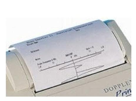 ArjoHuntleigh ACC15 Plain Printer Paper